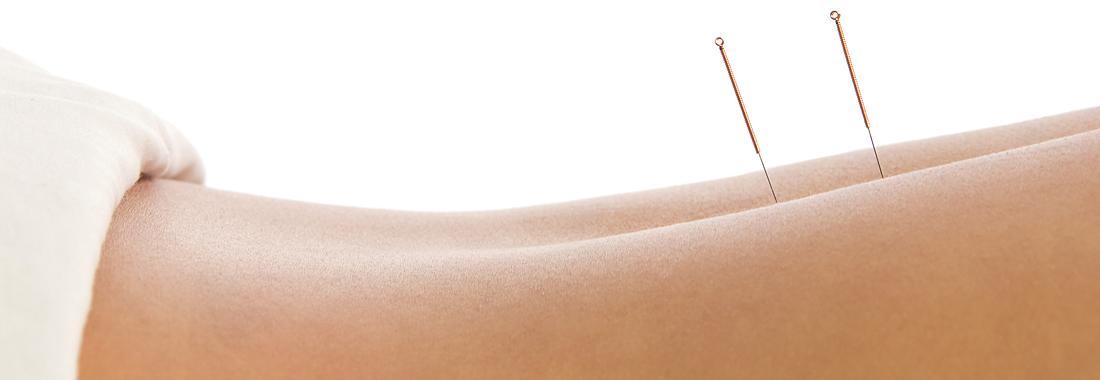 In einem Rücken, der teilweise von einem weißen Tuch bedeckt ist, stecken zwei Akupunktur-Nadeln.
